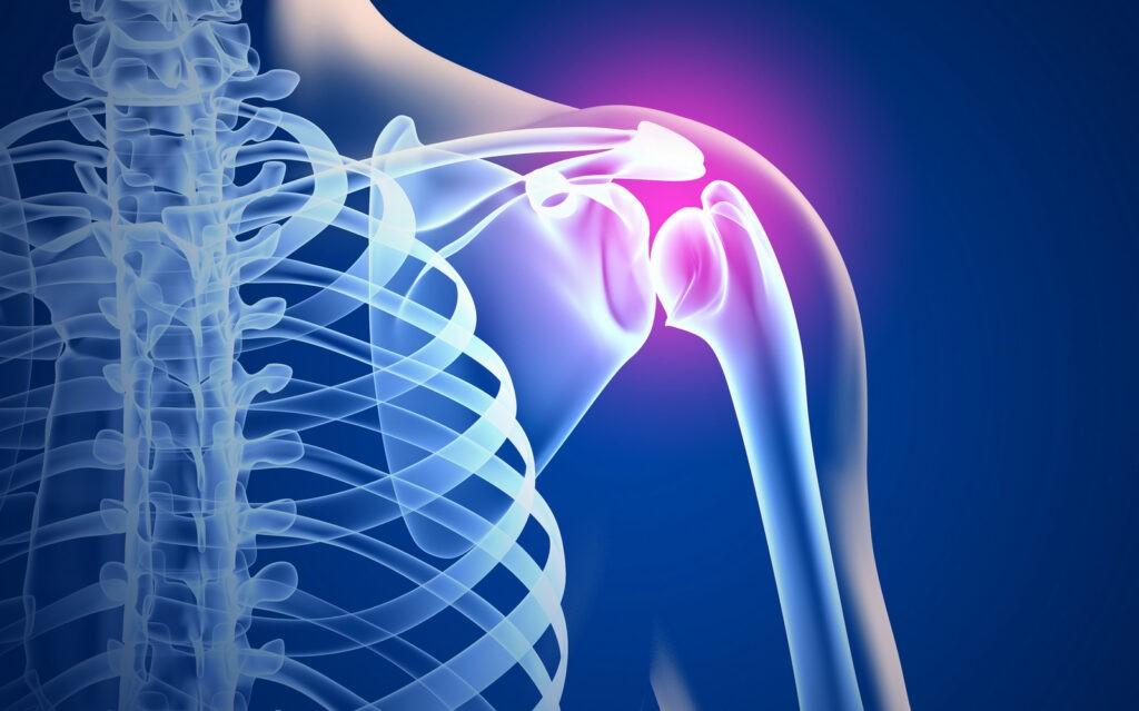 Причины артроза плечевого сустава. Симптомы и лечение